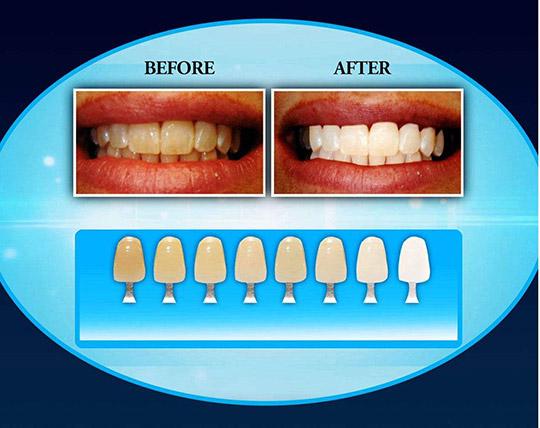 dental-light-up
