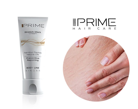 کرم ترک پوست پریم Prime Stretch Mark